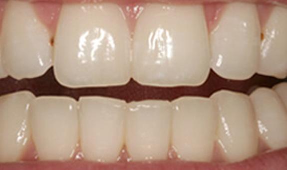 Harwood Dental Care Bolton