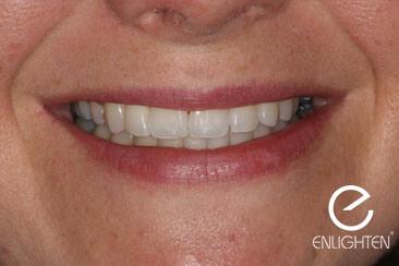 patients white smile