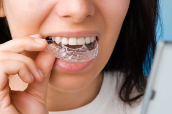 10 Facts About Invisalign Braces
